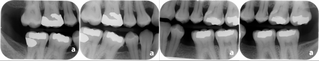 find the caries bitewing radiographs June 2014
