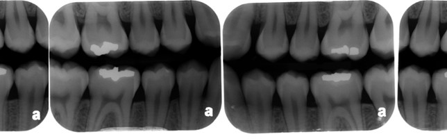 find the caries - July 2014c