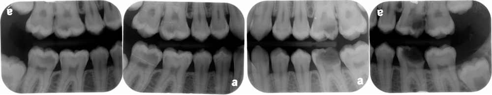 find the caries bitewing radiographs July 2014a