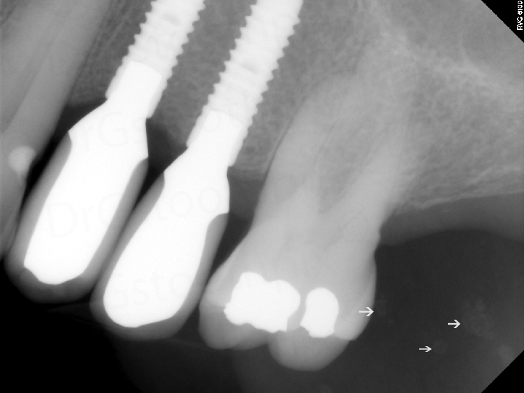 Periapical radiograph showing multiple punctate radiopaque entities.