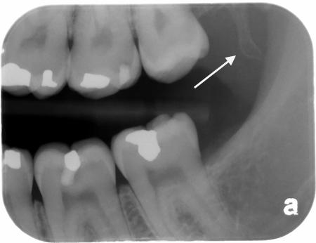 Anatomy – hamulus – bitewing – drgstoothpix – Dr. G's Toothpix