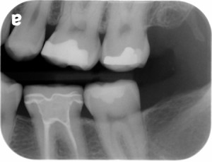 Bitewing radiograph showing hamulus as a radiopaque entity distal to the maxillary tuberosity.