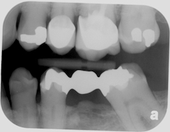 Bitewing radiograph - smaller but still excess bone growth under a pontic.