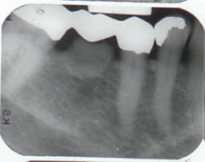 Periapical radiograph - excess bone touching the pontic.