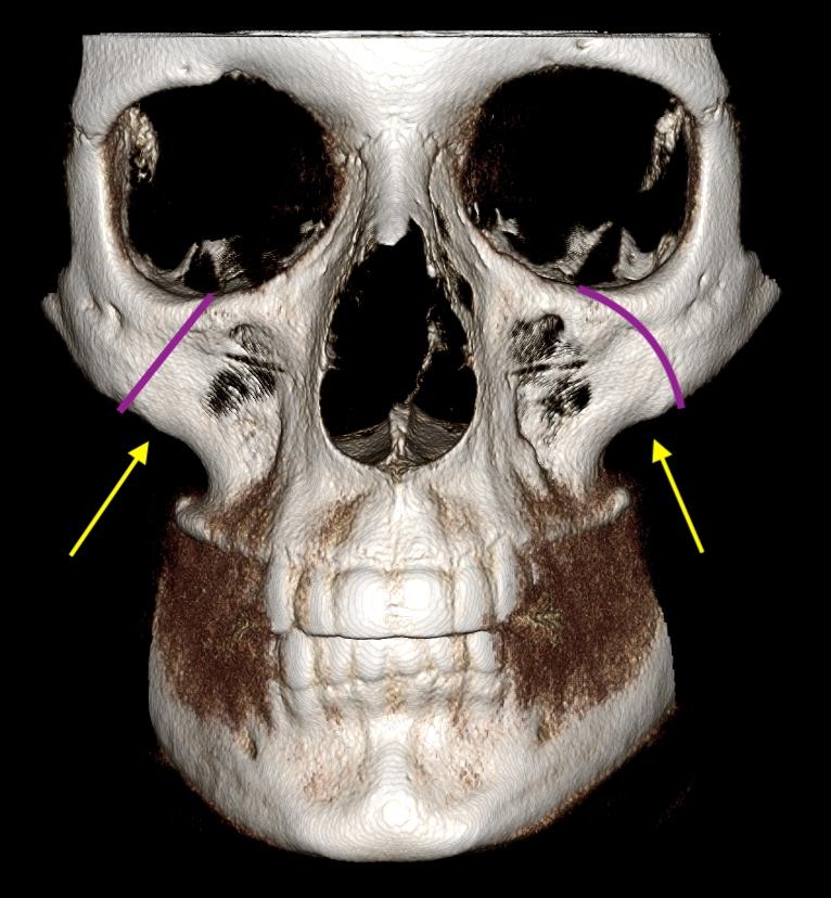 Interactive skull anatomy 6602753 - follow4more.info