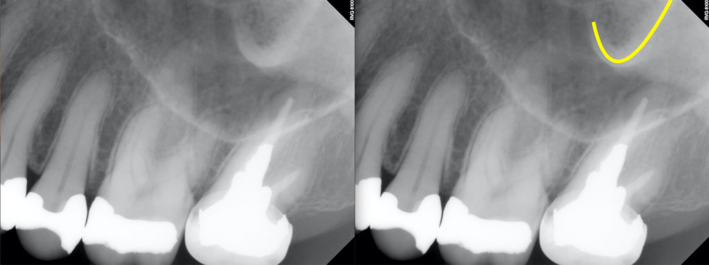 Anatomy Monday: Zygomatic Process of the Maxilla – Dr. G's ... Zygomatic Process Of Maxilla